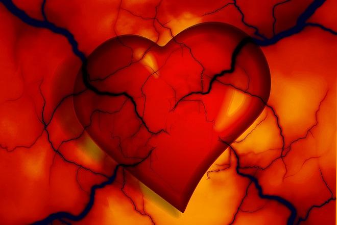 Da li znate... da kardiovaskularne bolesti u Srbiji ima oko dva miliona ljudi (foto: Pixabay)