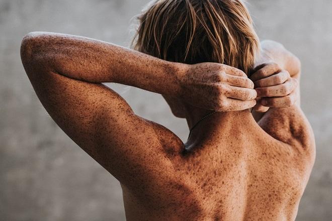 Sve što bi trebalo da znate o raku kože